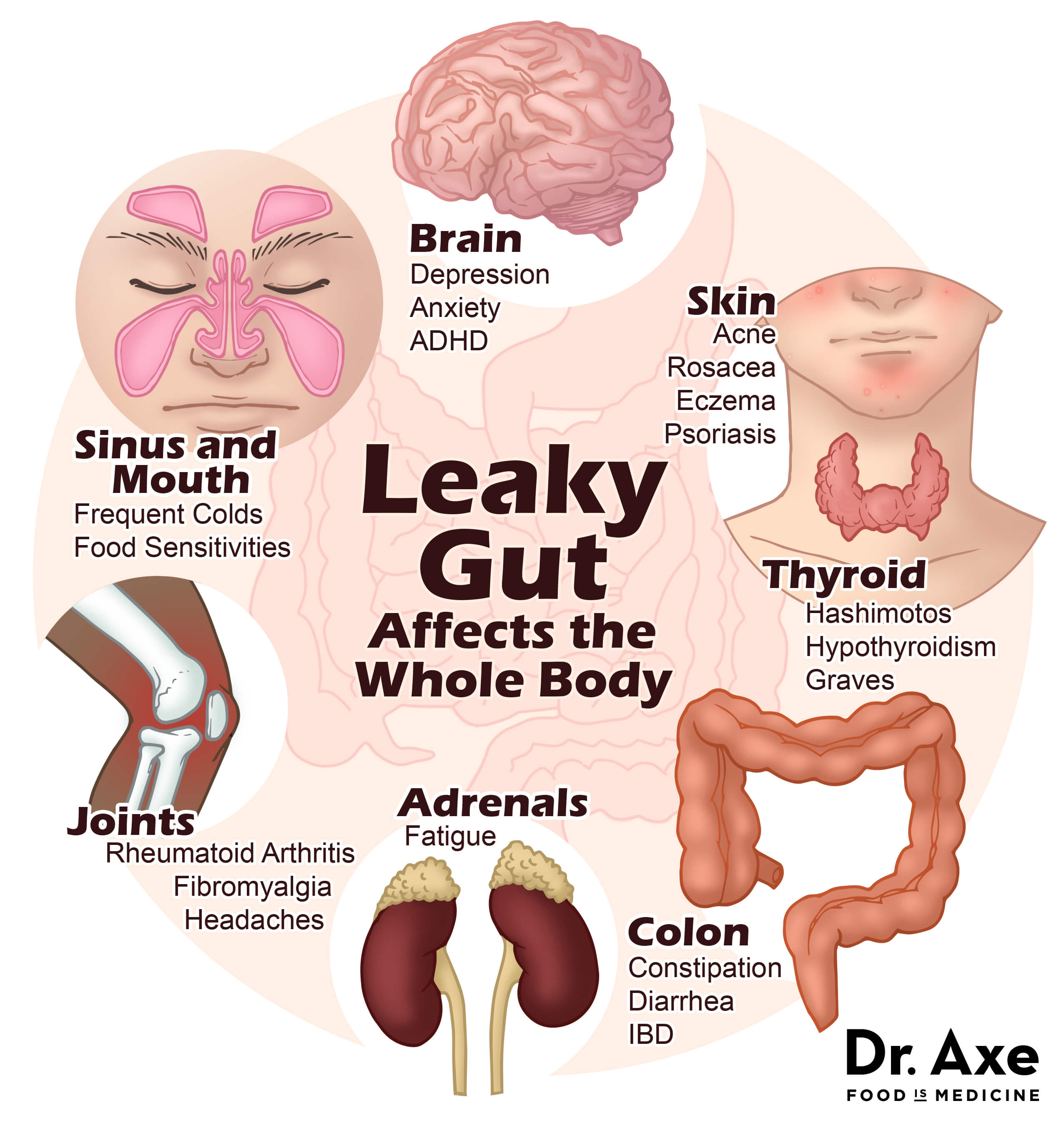 leaky gut image | Cook Clean with Kate